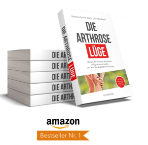 Arthrose-Lüge